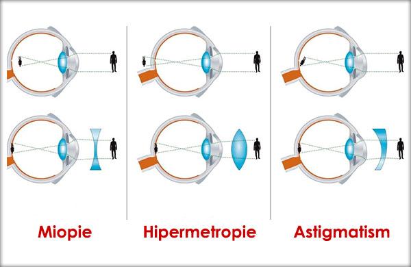 Miopie, Hipermetropie, Astigmatism