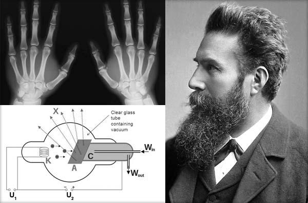 Radiatia-X---Wilhelm-Conrad-Rontgen